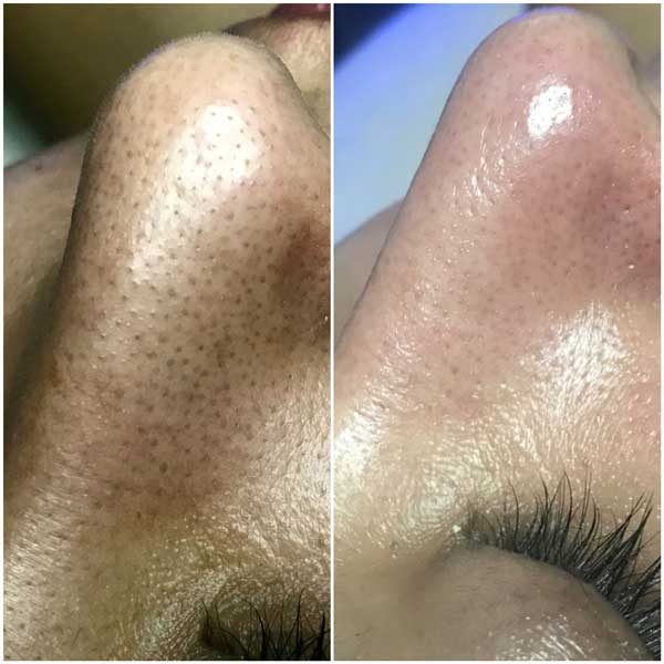 The Skin Clinic Online Hydrafacial before and after