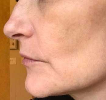 The Skin Clinic Online IPL Photofacial face after