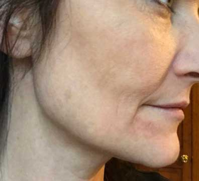 The Skin Clinic Online IPL Photofacial face before