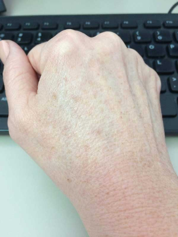 The Skin Clinic Online IPL Photofacial hands after