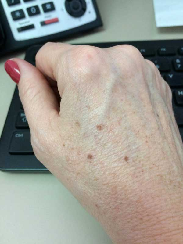 The Skin Clinic Online IPL Photofacial hands before