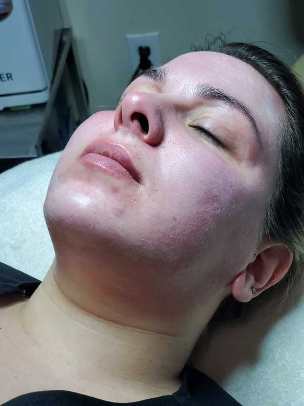 The Skin Clinic Online lunchtime peel before image
