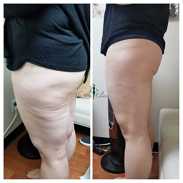 The Skin Clinic Online Venus Legacy Laser Cellulite Treatments